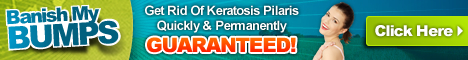 Get Rid Of Keratosis Pilaris